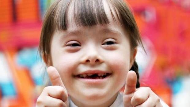 Should a person with Downs Syndrome be baptized?